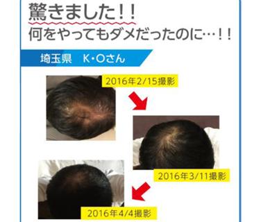 お客様の声/埼玉県/K.O様
