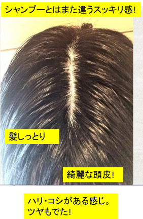 お客様の声/岐阜県/30代/A.I様-2