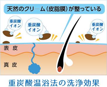 重炭酸温浴法の洗浄効果